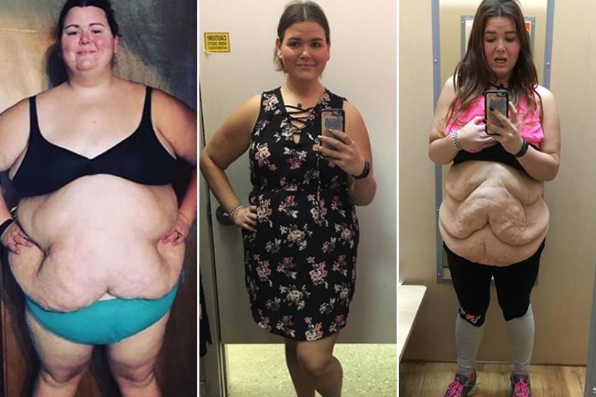 hogyan fogy a túlsúlyos ember fogyás egészséges tippek