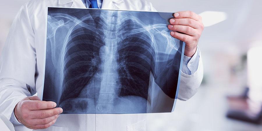 Mikortól veszélyes a tüdőgyulladás? - Egészség | Femina