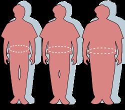 kórosan elhízott terhesség alatt fogy gyorsan veszít a zsírszázalékból