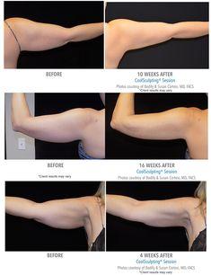 alfa a5 zsírégetők mellékhatásai