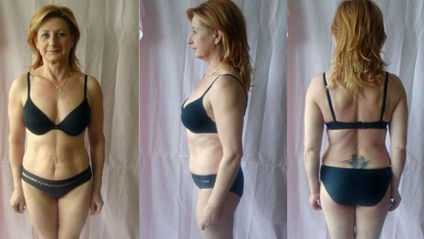 könnyű fogyás 50 év felett 90-60 kg-os fogyás