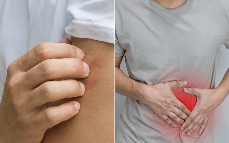 súlyvesztést okozó betegségek