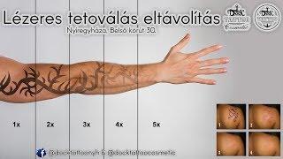 Fogyókúra: hogyan maradhat feszes a bőrünk?